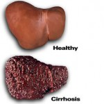 what does cirrhosis liver look like?